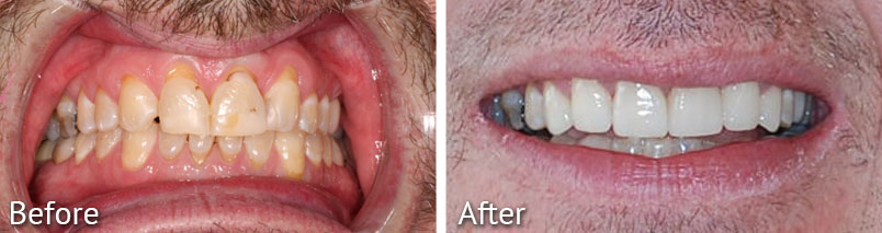 Emory Smile Makeover Before and After from HighPointe Dental