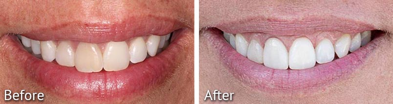 Jackie Smile Teeth Whitening Before and After from HighPointe Dental