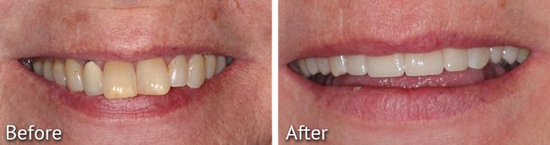 Janice Smile Makeover Before and After from HighPointe Dental