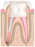 Animated image of a Root Canal