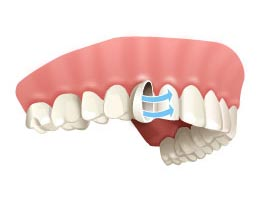 Animated image of a dental veneer