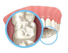 Animated Image of a dental filling