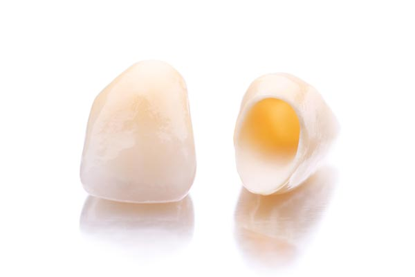 Image of two dental crowns