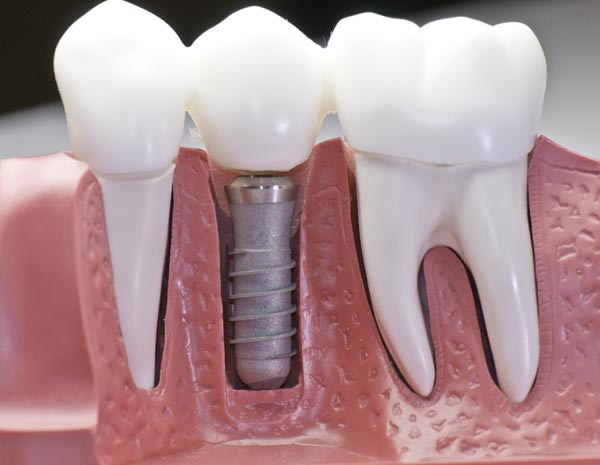Image of a model showing how a dental implant works