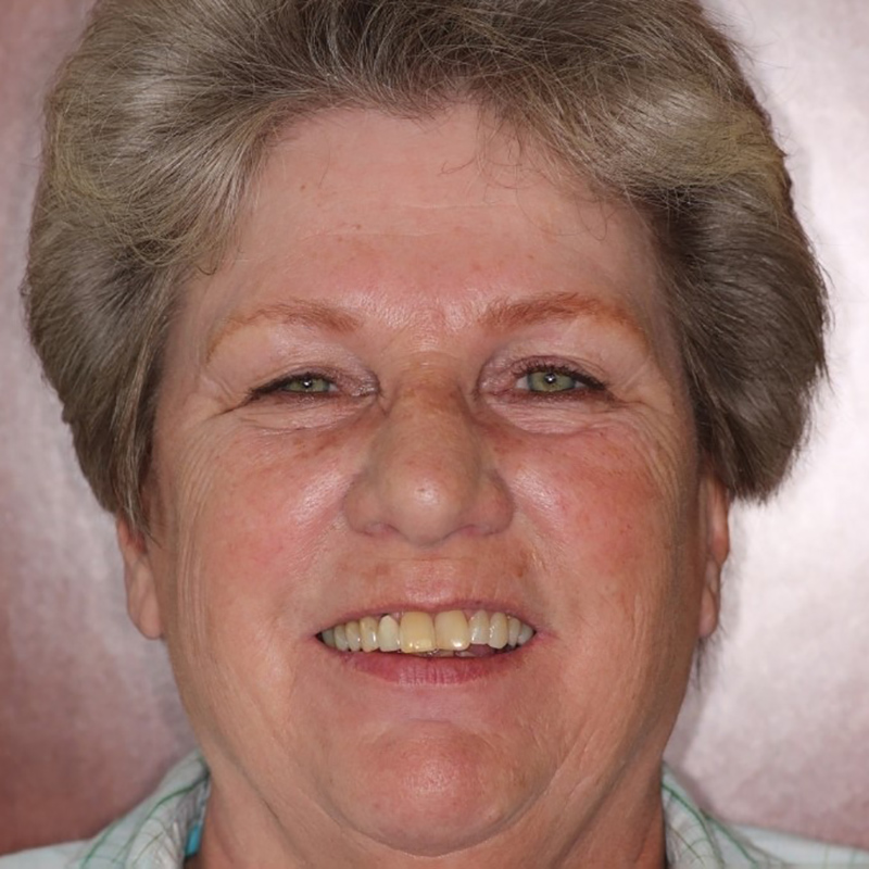 Image of Janice, before treament at High Pointe Park Dental in Thornton, CO.
