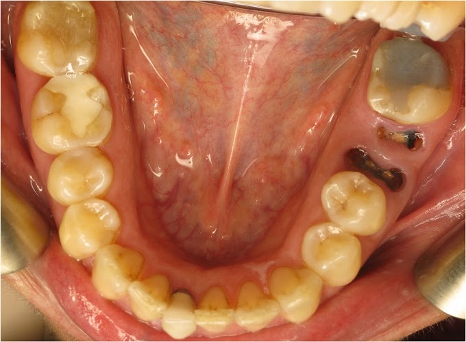 Image of Missing Teeth