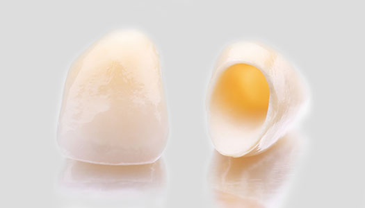 Image of dental crowns