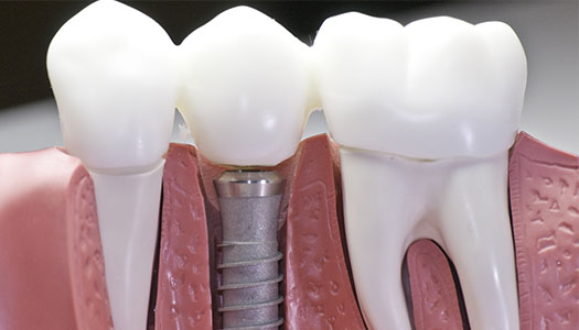Image of a dental implant